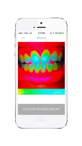 Smile - Dental Hygiene Analysis